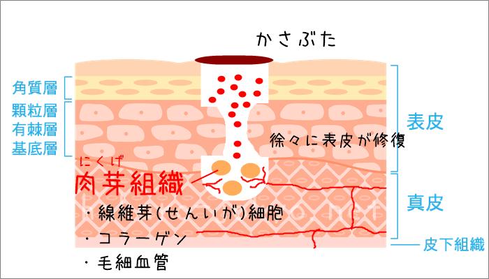 ほくろ除去後の傷跡の治り方ー肉芽組織