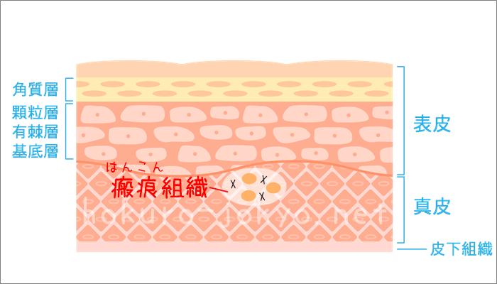 ほくろ除去後の傷跡の治り方ー瘢痕組織