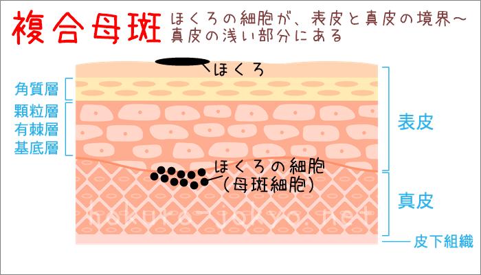 ほくろ除去後の再発-複合母斑