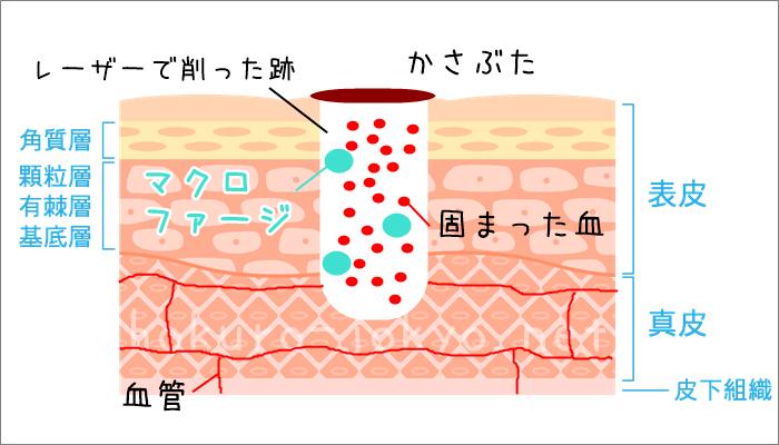 ほくろ除去後の傷跡の治り方ーマクロファージ