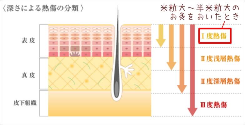 もぐさでのほくろ除去-お灸をしたときの熱傷(Ⅰ度熱傷)