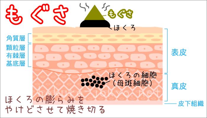 もぐさでのほくろ除去-もぐさでほくろを取るイメージ図