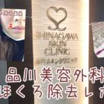品川美容外科でのほくろ除去口コミレポ【経過写真更新中】