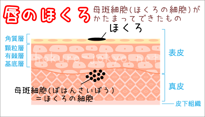 唇のほくろ(口唇色素斑)