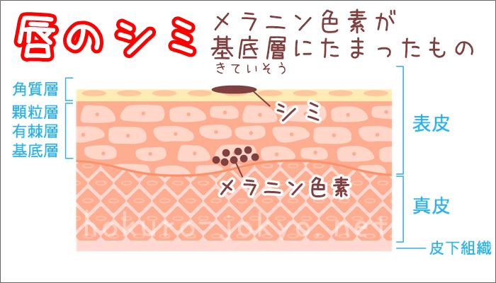唇のシミ(口唇メラノーシス)