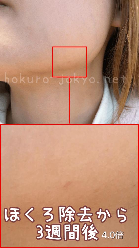 東京美容外科でのほくろ除去レポ(経過:3週間後)