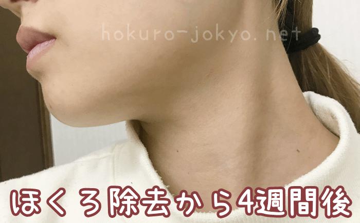東京美容外科でのほくろ除去レポ(経過:4週間後)