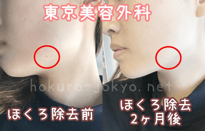 ほくろ除去前後写真-東京美容外科