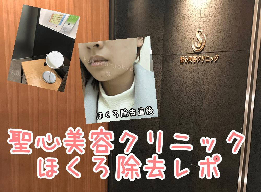 聖心美容クリニックでの顔のほくろ除去レポ【経過写真更新中】